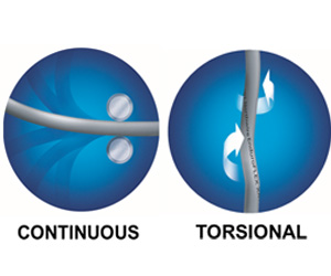 Torisonal vs continous